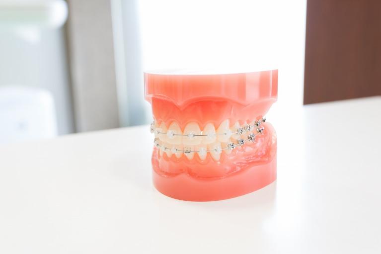 永久歯列の治療(第二段階の治療)