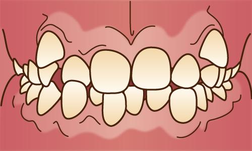 叢生(歯がガタガタに並んだ状態)