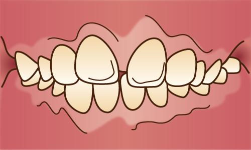 出っ歯(上顎前突)・受け口(反対咬合)