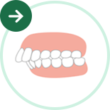 前歯・出っ歯の矯正