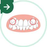 八重歯の矯正