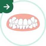 ガタガタ歯の矯正