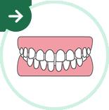 すきっ歯・開咬の矯正