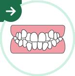 ガタガタ歯・八重歯の矯正